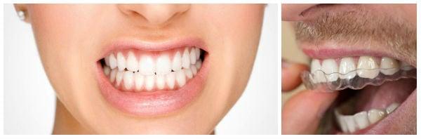 Методи за лечение при бруксизъм (скърцане със зъби)