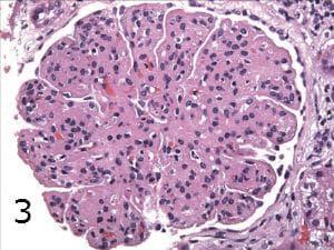 микроскопско изследване на мезангиокапилярен гломерулонефрит