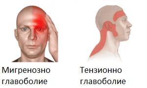 Мигрена и главоболие от тензионен тип