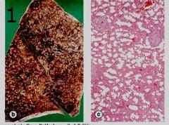 микроскопско изследване на милиарна туберкулоза