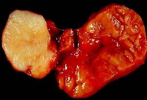 Плеоморфен аденом (смесен тумор)