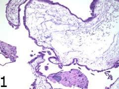 микроскопско изследване на пълна мола хидатидоза