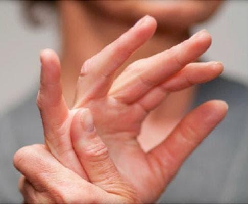 Моминска вратига при ревматоиден артрит