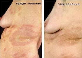 Локализирана склеродермия [morphea]