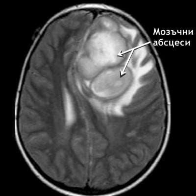 Мозъчни абсцеси
