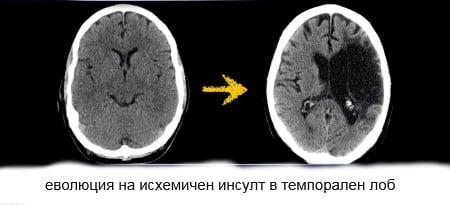 Кт при мозъчен инфаркт