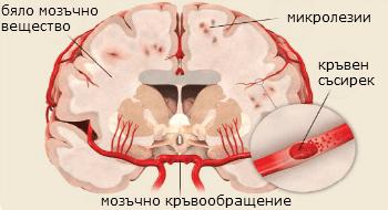 мозъчно кръвообращение