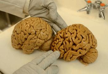 мозък с деменция на Алцхаймер