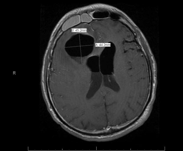 КТ-фронтален синузит