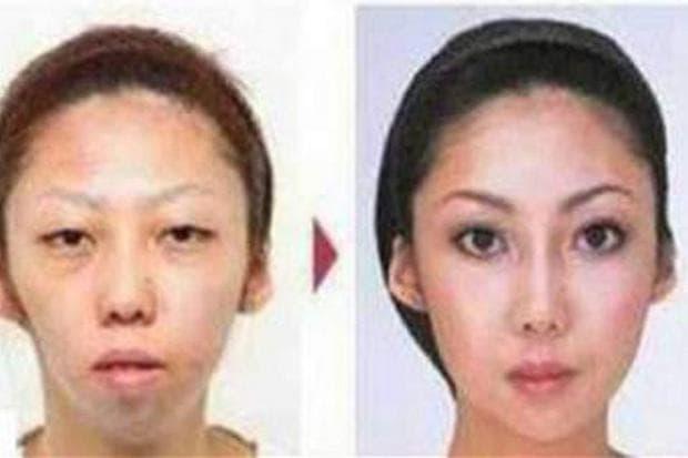 преди и след операциите