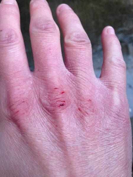 Суха и напукана кожа на ръцете
