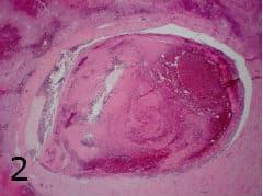 микроскопско изследване на клинична патология на нарушенията в кръвообращението на черния дроб