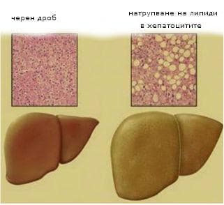 натрупване на липиди в клетката