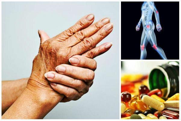 Необходимост от прием на добавки при артрит