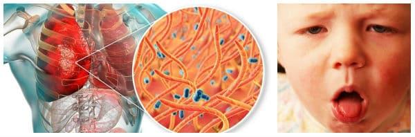 Необходимост от своевременно лечение на коклюш (магарешка кашлица)