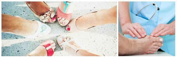 Неподходящите обувки водят до умора, мазоли, увреждания на ходилата