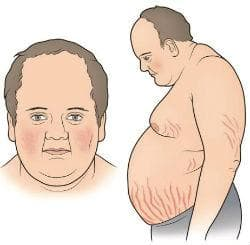Нежелани ефекти при употребата на кортикостероиди