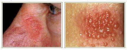 Алергичен контактен дерматит от никел
