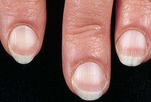 Какво показват ноктите за нашето здраве Nokti2