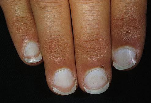 Какво показват ноктите за нашето здраве Nokti3