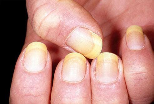 Какво показват ноктите за нашето здраве Nokti4