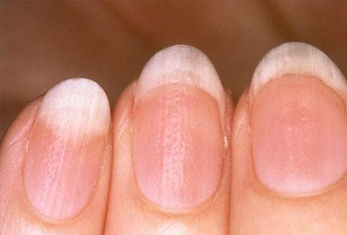 Какво показват ноктите за нашето здраве Nokti6