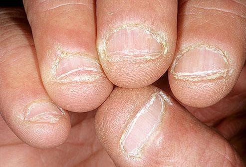 Какво показват ноктите за нашето здраве Nokti9