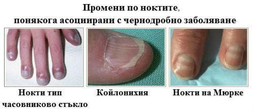 Промени по ноктите