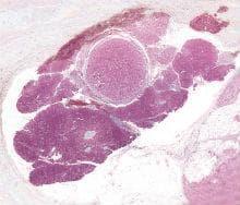нефункциониращи островноклетъчни тумори