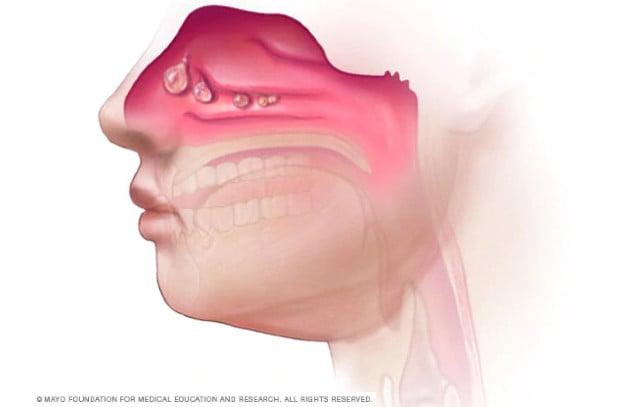 Носни полипи