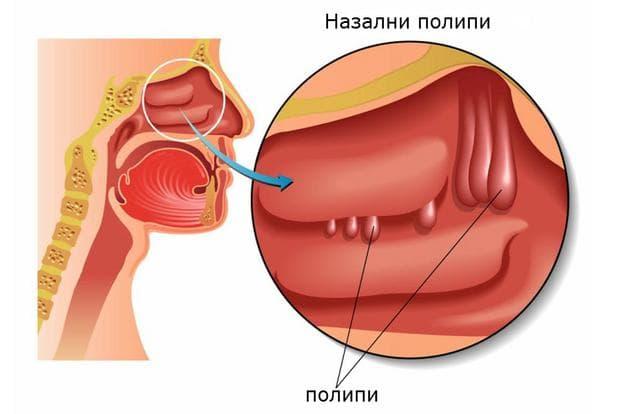 носна полипоза