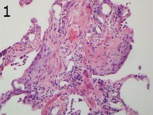 микроскопско изследване на обичайна интерстициална пневмония