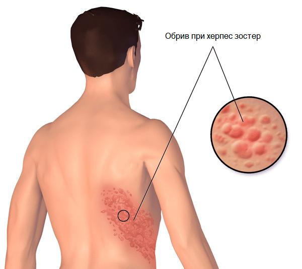 Херпес зостер: симптоми, характерен обрив, рискове