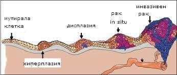обща морфология на туморите