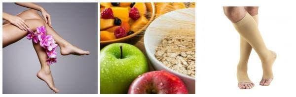 Общи мерки за лечение при разширени вени - диета, спорт, еластични чорапи