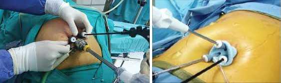 SILC се извършва с малък кожен разрез около или през пъпа