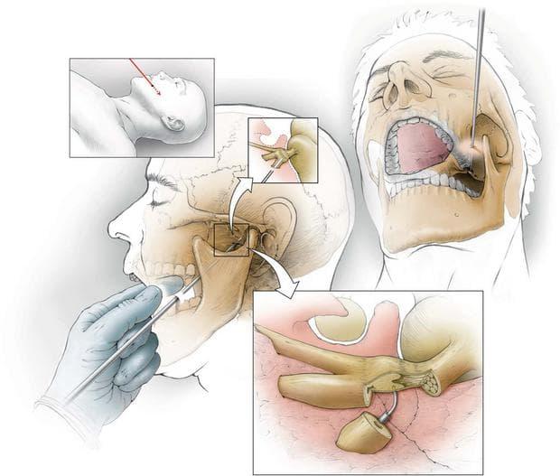 Хирургично лечение на тригеминална невралгия