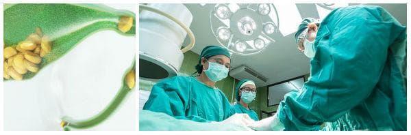 Оперативно лечение на камъни в жлъчката (холецистектомия)