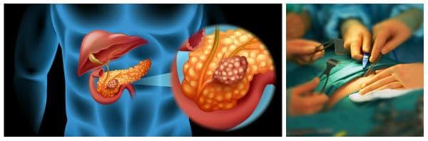 Оперативно лечение (хирургия) при рак на панкреаса