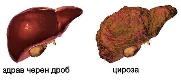 Особености на чернодробната алкохолна цироза
