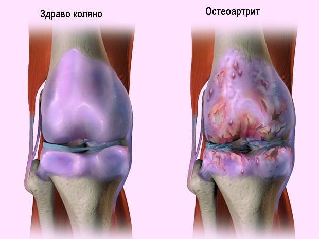 Кои добавки са ефективни при артрит?
