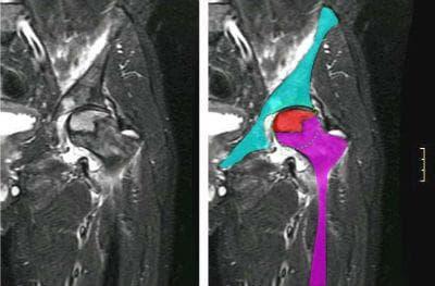 Ядрено-магнитен резонанс на остеонекроза