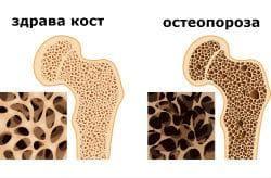 Остеопороза
