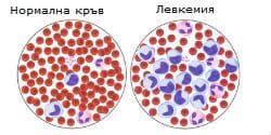 Остра лимфобластна левкемия - кръв