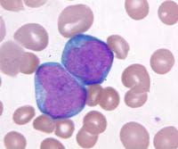 Остра миелоидна левкемия - клетки