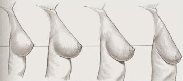 отпускане на гърдите