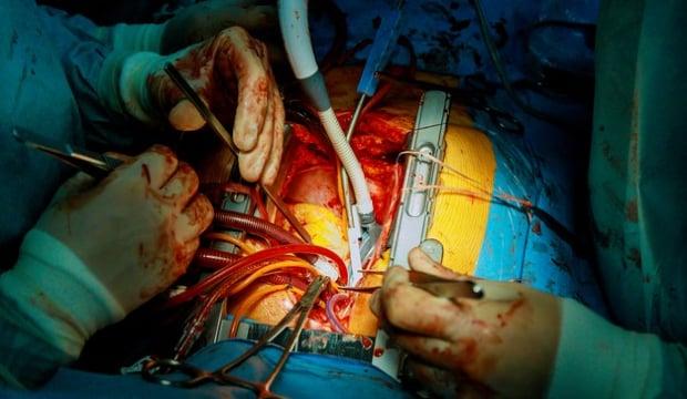 Отворена операция за смяна на аортна клапа
