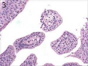 микроскопско изследване на папилом