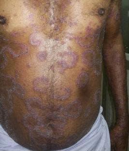 Папулосквамозни уврежданe