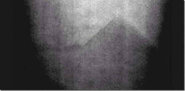 Пирамидите на луната